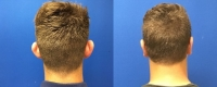 Before & After Otoplasty Back