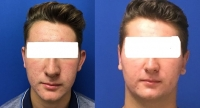 Before & After Otoplasty Front