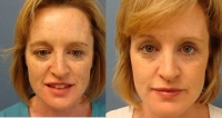 Before and After Phototfacial
