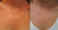 Before and After Photofacial of the Décolletage