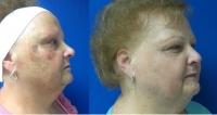 Before and After Photofacial