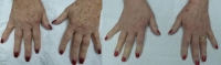 Before and After Hands Photofacial