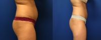 Before & After Abdomen CoolSculpting
