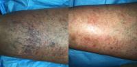 Leg-Veins-Before & After