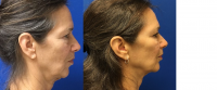 Before & After Ultherapy