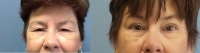 Before & After Upper Eye Lid Lift