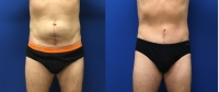 Before & After Abdominoplasty