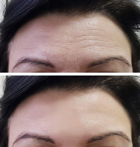 Model Before and After Forehead Injections