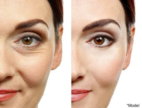 A woman before and after non-surgical treatments like Ultherapy and Radiesse.