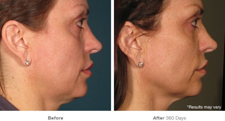 Woman before and after Ultherapy treatment.