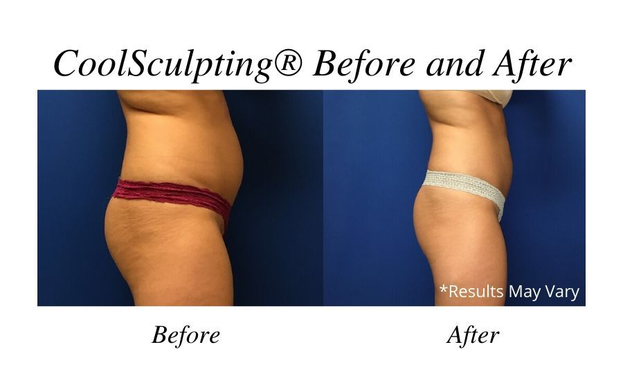 Before and after image showing the results of CoolSculpting® performed by Dr. Rudolf Thompson in Colts Neck, NJ.