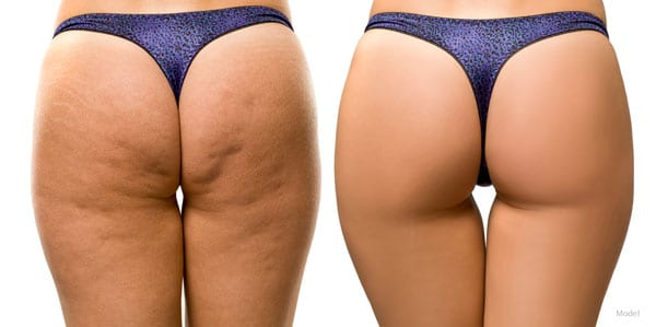 A woman's legs demonstrating the effects of CELLFINA™ treatment. Cellulite is reduced, and a smoother appearance is achieved.