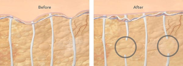 A before and after example of how CELLFINA™ smooth dimpling in the skin by breaking fibrous strands throughout the fat.