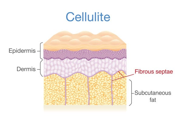 An example of cellulite developing in the fatty layers of the skin.